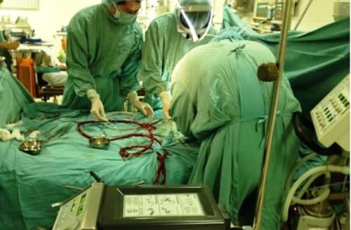 Khoa tim mạch thực hiện kỹ thuật ECMO