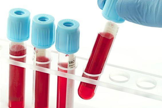 xem kết quả xét nghiệm máu